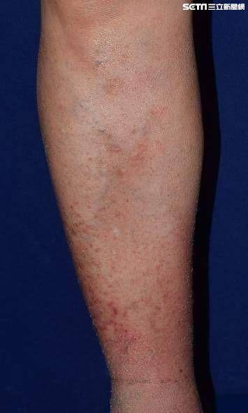 氣溫,乾癢,保養,皮膚,冬天,冬季癢,成大醫院皮膚部
