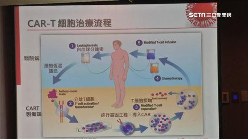 CAR-T免疫細胞療法