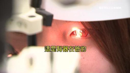 獨/腎氣不足導致流眼油 決明子.菊花助改善