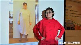 現年23歲的鍾華瑄,大四體重胖到133公斤,接受袖狀胃減重手術後1年半體重減少65公斤,四肢麻木的症狀也跟著消失了。(圖/記者楊晴雯攝)