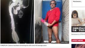 墨西哥,GG,陰莖,長度,皮膚發炎,包皮,殘障人士,長度 https://www.dailystar.co.uk/news/latest-news/671909/world-s-biggest-penis-roberto-esquivel-cabrera-18-9-inches-fake-6-inches-foreskin-stretch