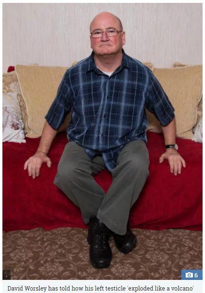英國大叔到北非旅遊,感染罕見沙門氏菌,導致睪丸腫脹破裂。(圖/翻攝The Sun太陽報)
