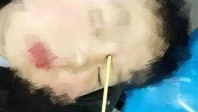 陸男童跌倒 關東煮竹籤插眼睛(圖/翻攝自溫州晚報)