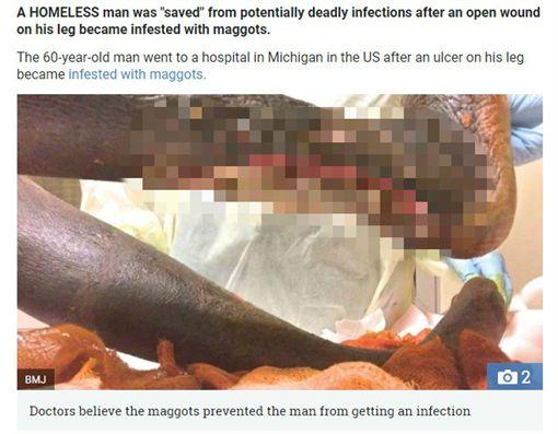 遊民小腿嚴重潰爛,蛆蟲寄生(圖/翻攝自太陽報)https://www.thesun.co.uk/news/5311378/grim-video-shows-homeless-mans-leg-crawling-with-maggots-but-doctors-say-it-saved-him-from-deadly-infections/