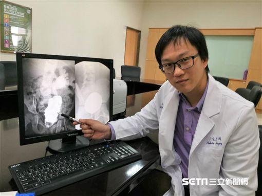 雙和醫院小兒外科醫師魏晉弘說,無肛症源於胚胎發育不完全,國內發生率約四千分之一至五千分之一,且性別比例相同。(圖/記者楊晴雯攝)