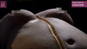 肥胖,過重,解剖,油脂,脂肪(圖/https://www.youtube.com/watch?v=LW9WmnNrfQ8)