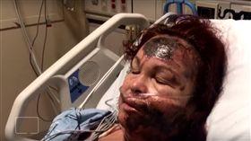 美國,紐約,婦人謊稱潑灑酸性物質隨機攻擊,毀容(圖/https://www.youtube.com/watch?v=NcfZAhrJaW0)