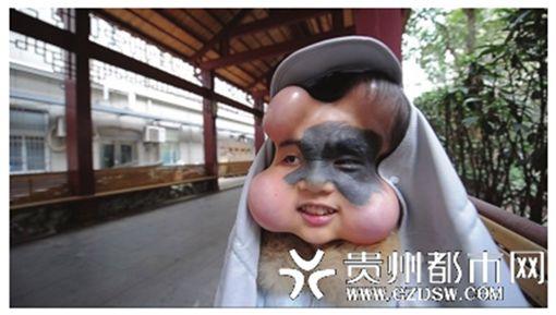 為去除臉上一大片黑痣,肖艷決定動手術,要頂著葫蘆臉長達8個月。(圖/翻攝貴州都市網)