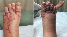 鉤蟲入侵情侶腳掌紅腫化膿。(圖/Katie Stephens、 Eddie Zytner臉書)
