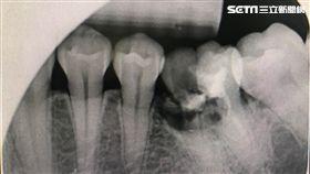 阮綜合醫院,牙科,醫師,陳湘蓁,過年,蛀牙,牙齒,零食