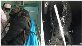 中國大陸一工人肛門遭鋼筋插入貫穿體腔(合成圖/翻攝自太陽報、微博)