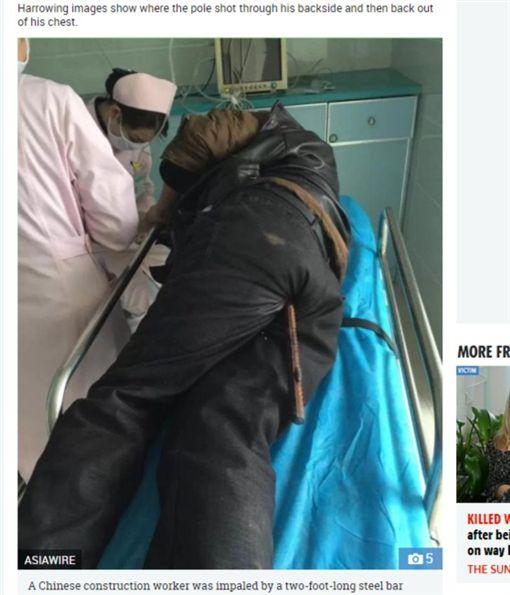 中國大陸一工人肛門遭鋼筋插入貫穿體腔(圖/翻攝自太陽報)