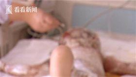 中國大陸,黑龍江,女嬰,鍋爐,燙傷(圖/微博)