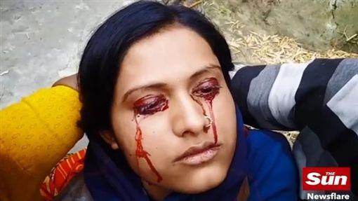 印度21歲人妻吉塔(Geeta)疑似罹患淚血症,雙眼不斷流血淚(圖/翻攝自太陽報)https://www.thesun.co.uk/news/5559499/wife-21-labelled-a-witch-by-her-husband-due-to-rare-condition-that-sees-her-sweat-blood-from-her-eyes/