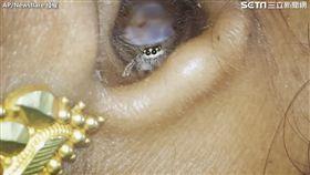 印度婦人耳朵藏蜘蛛。(圖/翻攝自AP/Newsflare)