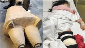 5歲女童摸一下山寨兵馬俑,竟被砸到重傷骨折。(圖/翻攝都市快報)