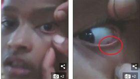 印度一名11歲女童阿什威妮(Ashwini),她的眼睛出現刺痛感,就醫後仍沒改善,更可怕的是,她的眼睛慘變「螞蟻窩」,10天內爬出60隻螞蟻。醫師推斷螞蟻可能從她的耳朵鑽入,但還沒找到確切原因。(圖/翻攝自每日郵報)