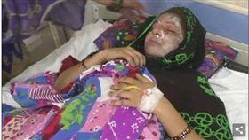 印度一名25歲女子法拉(Farah)日前生女寶寶,但因為老公斯拉杰(Siraj)想要兒子,氣得拿酸性液體往法拉臉上潑,隨後逃離現場。法拉被送往醫院後,臉部、手和腹部嚴重灼傷,目前警方正在追查斯拉杰的下落。(圖/翻攝自每日郵報)