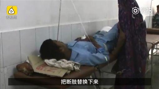 印度男車禍,截肢,斷肢當枕頭(圖/http://www.miaopai.com/show/lLRmMt0M45j4XhVXUC2lQ36ax6OlUpIpiiCIqw__.htm)