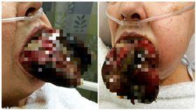 豬肝掛嘴邊?慎入!女子舌頭被蜘蛛咬到 慘況令人毛骨悚然 圖/翻攝自IG HealMeDoc