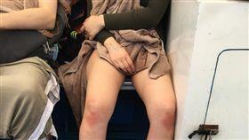 女膝蓋「曬紅痕跡」,網友留言歪樓。(圖/翻攝爆廢公社)