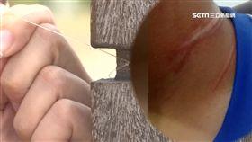 風箏線變凶器!割喉害摔車 騎士脖3條血痕
