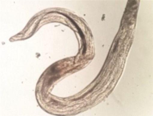 印度,大媽,眼睛,鼻子,寄生蟲,活蟲,眼角膜,視力(圖/翻攝自頭條新聞) ID-1298756