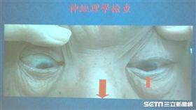 書田診所腦神經內科主任黃啟訓說,引發無疼痛突發性眼球歪斜常見的重要因素有:糖尿病、腦血管瘤壓迫、急性腦幹中風。(圖/記者楊晴雯攝)