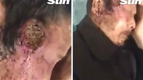 大叔,蛆,寄生蟲,太陽穴,頭,亞洲(圖/翻攝自The Sun)https://www.thesun.co.uk/news/6018023/liveleak-video-insects-eating-unconscious-man/
