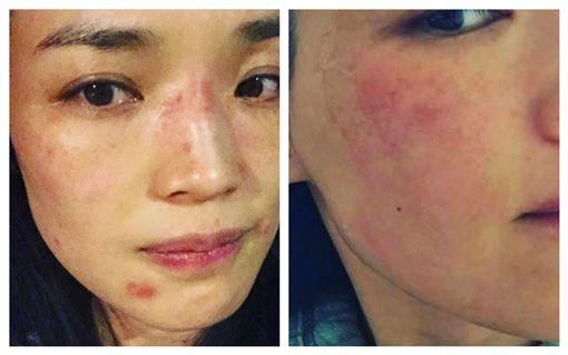 舒淇長期飽受皮膚過敏之困擾。(圖/翻攝自舒淇IG)