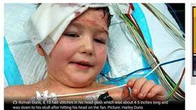 家長注意!4歲童爽跳床 結果頭撞吊扇縫13針 圖/翻攝dailymercury
