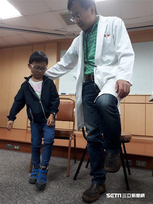 馬偕兒醫早產兒接受醫師單腳站力檢查。(圖/馬偕兒童醫院提供)