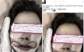 PO網抱怨牙齒矯正心路歷程 網友鼓勵:有勇氣的女生 (圖/翻攝自「爆怨公社」)