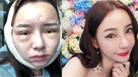 Kiwebaby,張朵,整形,韓國,藥物過敏,自拍/翻攝自臉書