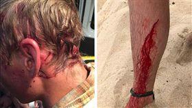 美國一名年輕男子遭響尾蛇、黑熊、鯊魚攻擊卻都奇蹟生還。(圖/翻攝自推特)