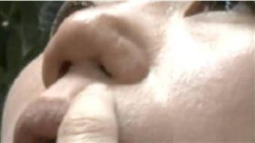 悲劇!女整鼻盼「多拉幾個客人」 結果鼻孔不見了 圖/翻攝自微博