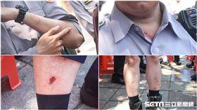 警方與反年改八百壯士推擠受傷,雙腳雙手頸部掛彩。 (圖/記者林敬旻攝)