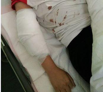 被老公打傷。翻攝自杭州網