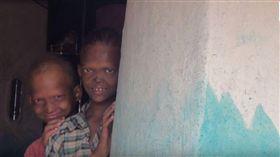 尖牙、扁鼻嚇壞村民!罕病兄弟被霸凌 家境貧困從未就醫(圖/翻攝自Rare Shot News CHANNEL YouTube)