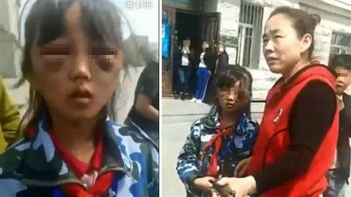 大陸黑龍江省慶安縣一名女童遭繼母虐打,女童雙眼睜不開來,眼周除了紅腫外,還有一圈紫黑色的瘀青,如同「熊貓眼」。女童稱臉上的傷是繼母打的,但繼母出現直喊「誰說我打的,誰看到是我打的?」目前當地警方已介入調查,女童也已送往醫院接受檢查和治療。(圖/翻攝自秒拍)