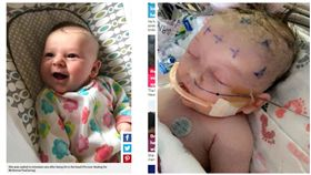 美國7周大女嬰在球場遭界外球擊中頭部命危(合成圖/翻攝自Metro、Healing for McKenna臉書)