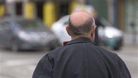 植髮,禿頭,韓國,光州,醫美,整形,掉髮,麻醉,手術,危險,解剖,暴斃,死亡,頭髮.頭皮 圖/翻攝自Pxhere https://goo.gl/DkfhP9