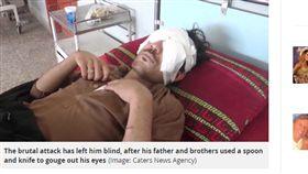 巴基斯坦,父親,兄弟,眼睛,眼球,少年,榜樣,結婚,女友 https://www.mirror.co.uk/news/world-news/man-eyes-gouged-out-spoon-12543894