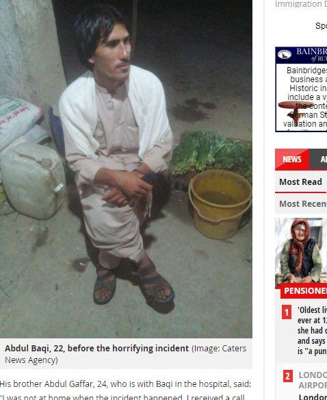 巴基斯坦,父親,兄弟,眼睛,眼球,少年,榜樣,結婚,女友https://www.mirror.co.uk/news/world-news/man-eyes-gouged-out-spoon-12543894