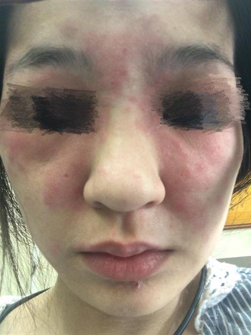 有一名女網友逛接時遇到一名櫃姐強迫推銷,櫃姐「從14萬的課程一路推銷到1萬多」,最後女網友花5000元做美容課程,不料課程結束後,她的臉部出現紅腫過敏現象。其他網友看到後,紛紛直呼「快去看皮膚科,然後直接提告!」(圖/翻攝自《爆怨公社》)