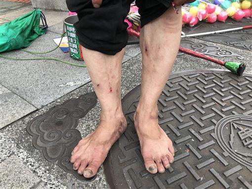 盲人,視障,踩高蹺,街頭藝人(記者郭奕均攝影)