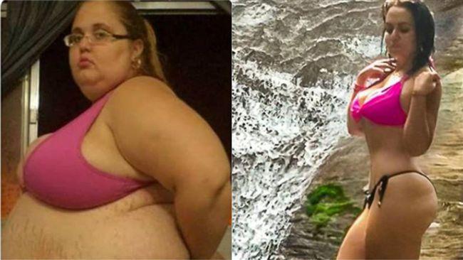 她割皮減肥狂鏟89公斤 瘦身照超辣