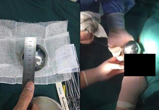 女下體取出巨大鐵球…遭醫護偷拍PO網譏笑 畫面流出挨轟翻攝微博