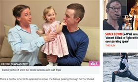 奇蹟!出生時「腦外露」 女嬰1歲了  英國,罕見疾病,奇蹟,腦膨出,畸形,腦脊液,母愛 https://www.thesun.co.uk/fabulous/6358147/toddler-born-brain-outside-skull-20-minutes-live/