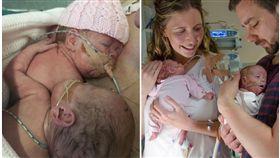英國雙胞胎早產兒夏綠蒂(Charlotte)和艾絲梅(Esme)/This is my brave face 臉書